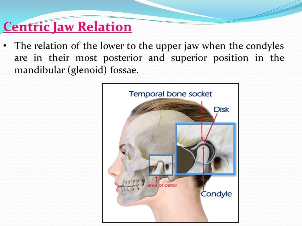 22 centric jaw relation