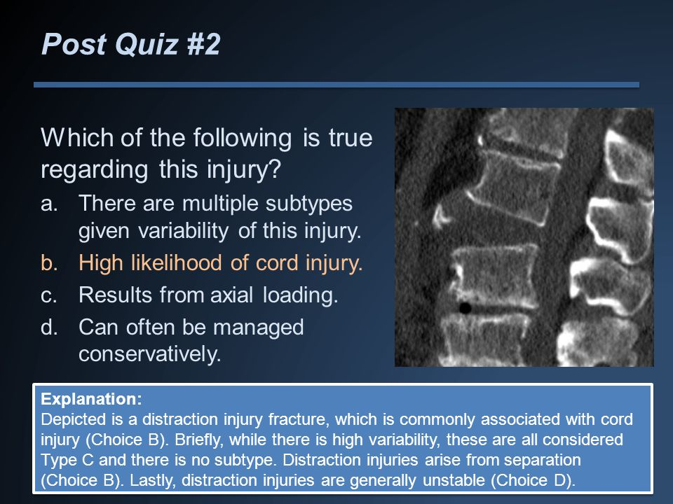 Post Quiz #2 Which of the following is true regarding this injury