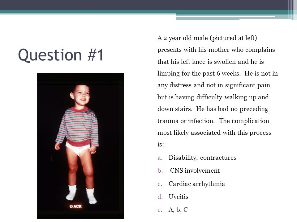 2 A 2 year old ...