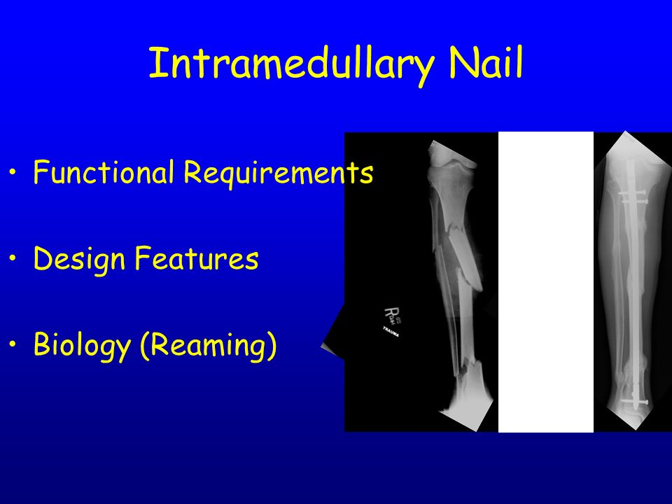 Intramedullary Nailing Basic Principles - ppt video online download