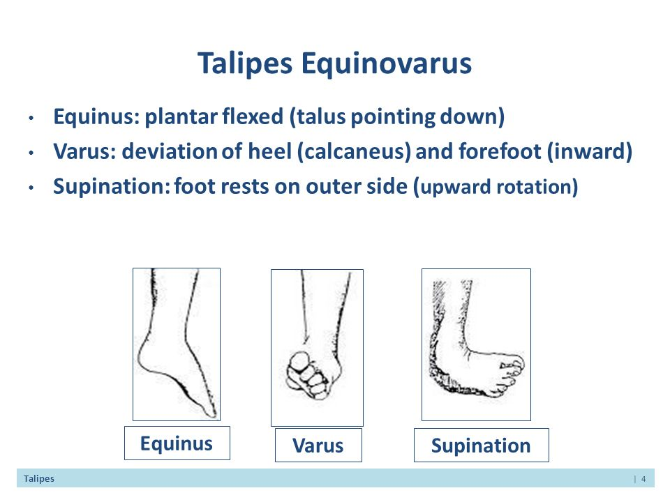 congenital talipes equinovarus treatment pdf