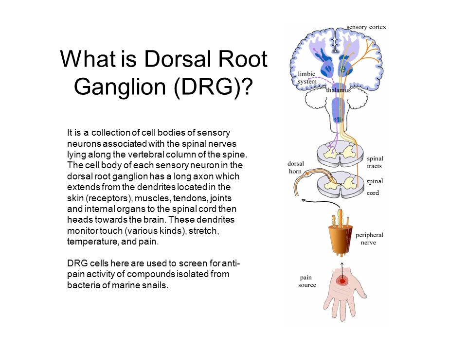What Is Dorsal Root Ganglion Drg Ppt Video Online Download