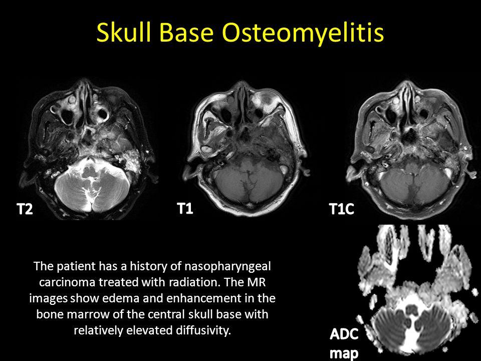 Daniel Thomas Ginat MD, MS Department of Radiology James M. Melotek ...