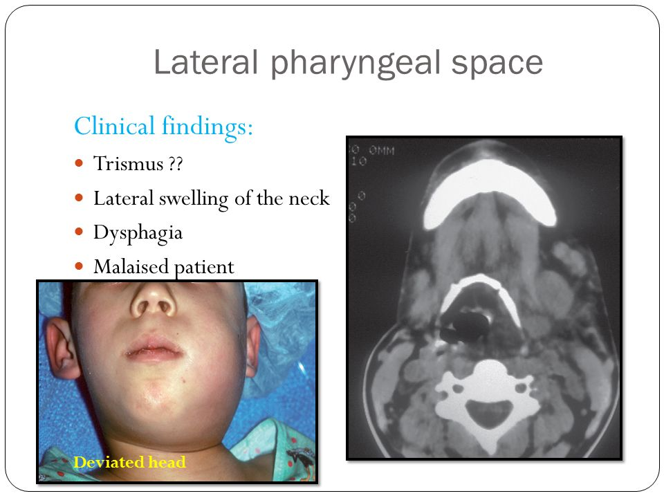 Deep Cervical Space Infections Ppt Video Online Download