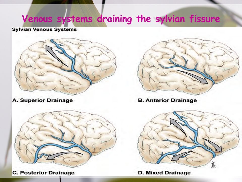 Sylvian Fissure. - ppt video online download