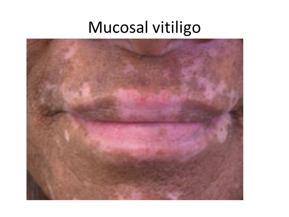Of the penis vitiligo What is