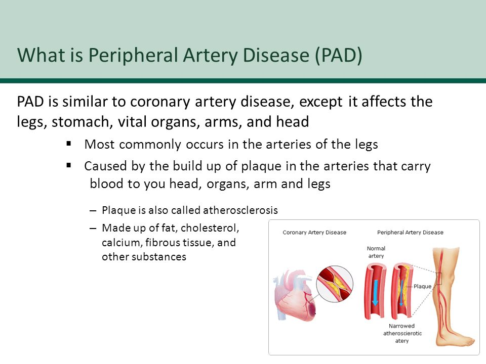 Peripheral artery disease (pad) ppt video online download.