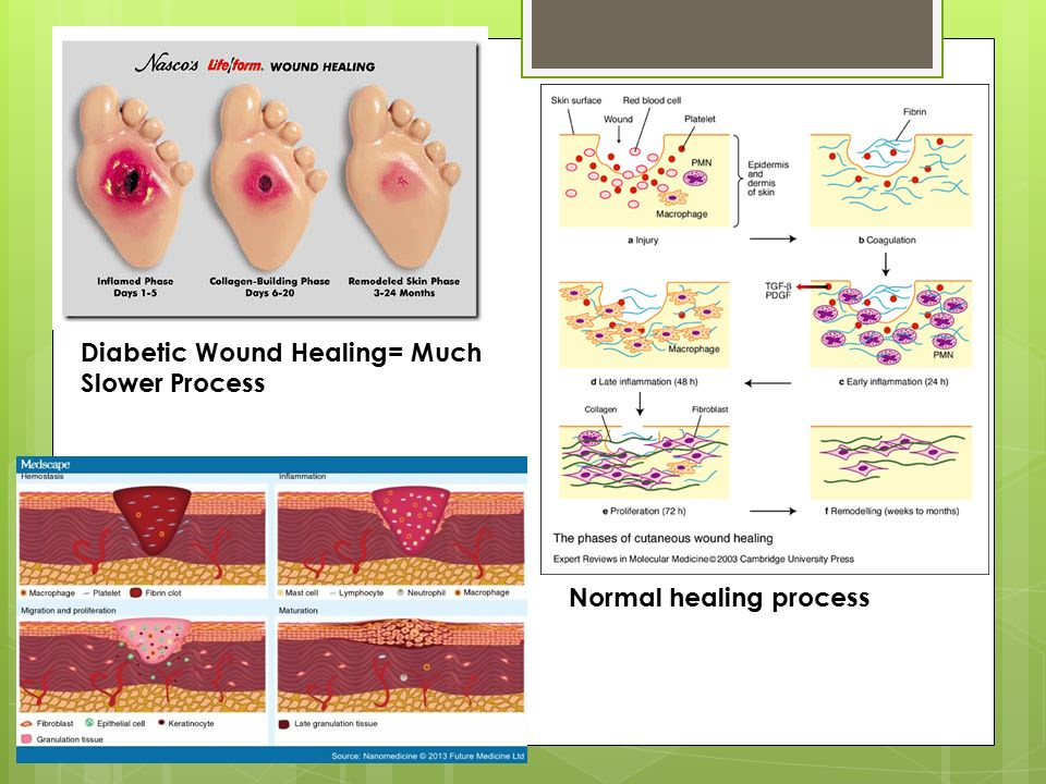 Tissue Repair Chapter 3 Ms  Figueroa  - ppt video online download