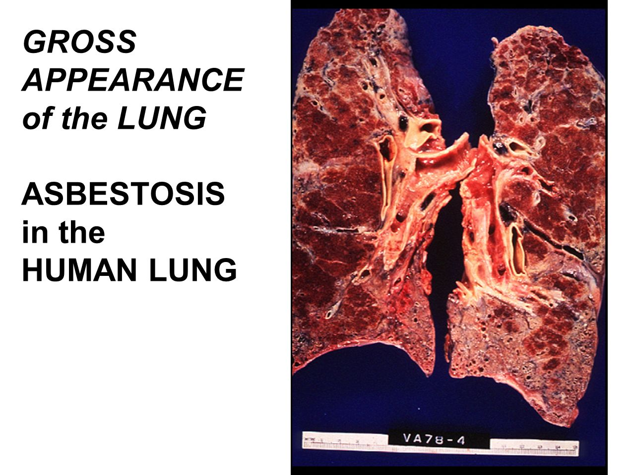 Toxic Effect In The Lung Respiratory System Ppt Video Online Download