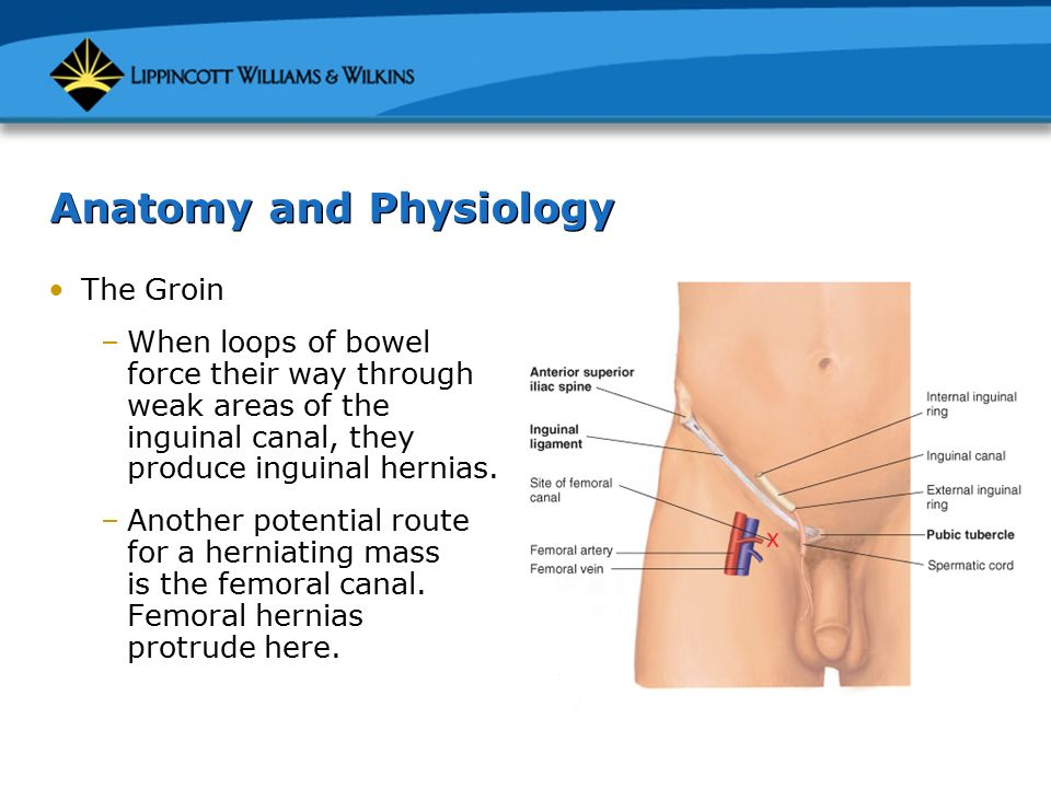 Anatomy Of Femoral Hernia Image collections - human body anatomy