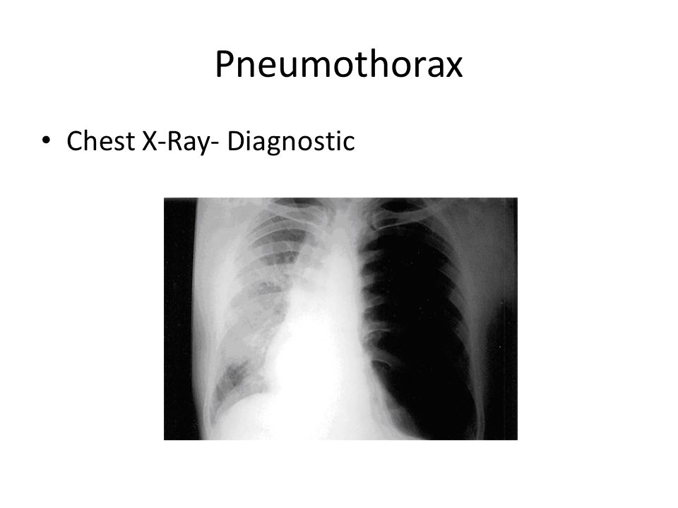 Respiratory Induced Chest Pain - ppt video online download