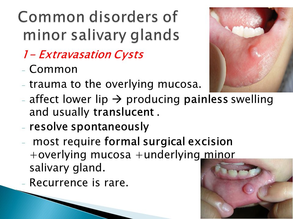 Salivary Glands Dr  ZAID MUWAFAQ AL-HAMID - ppt video online