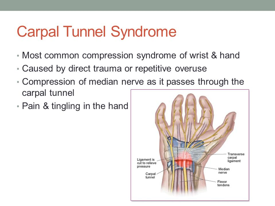 carpal tunnel syndrome 2 essay Carpal tunnel syndrome happens when the tendons in your hand become inflamed, pinching the nerve inside the carpal tunnel, steven shin, md, director of hand surgery at kerlan-jobe orthopaedic.