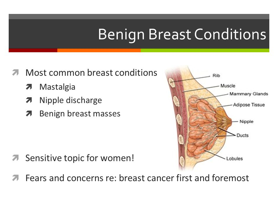 Benign Breast Conditions - ppt download