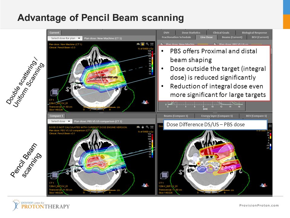 Advantage of Pencil Beam scanning