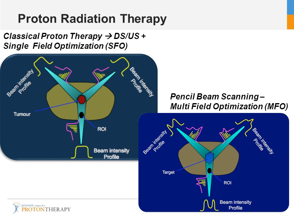 Proton Radiation Therapy