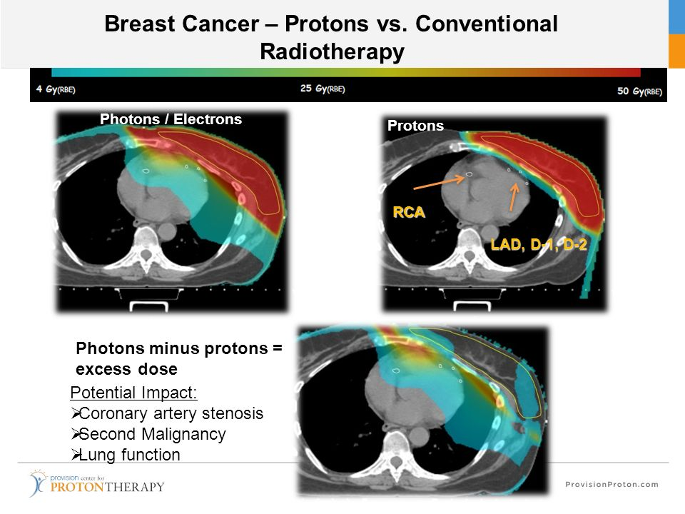 Breast Cancer – Protons vs. Conventional Radiotherapy