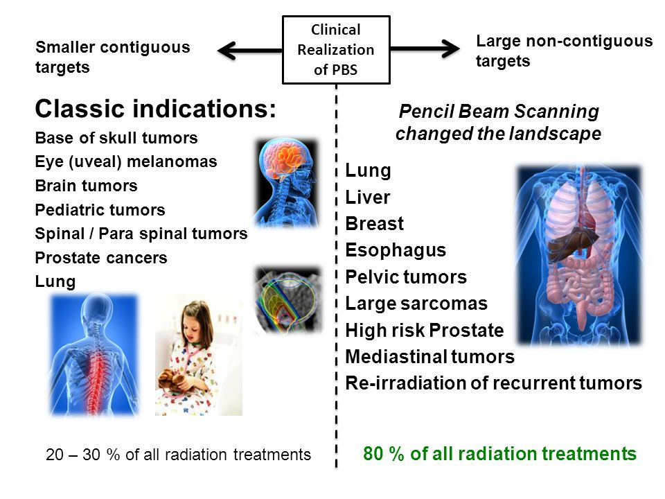 Clinical Realization of PBS Pencil Beam Scanning changed the landscape