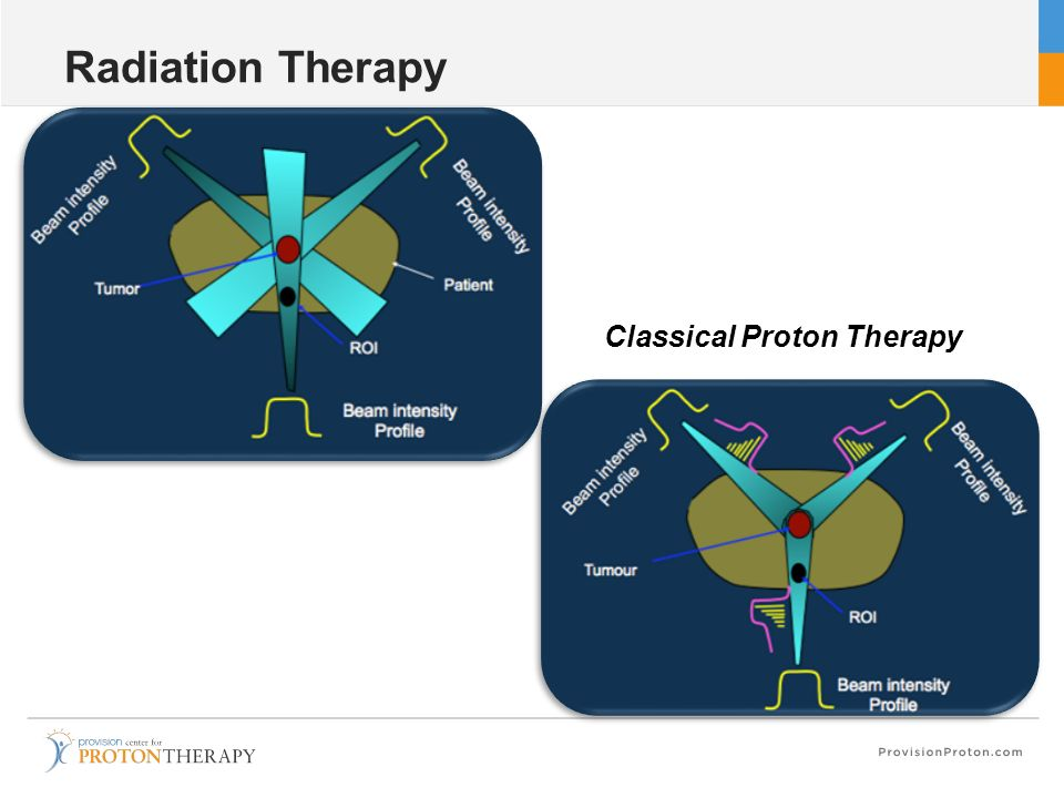 Radiation Therapy Classical Proton Therapy