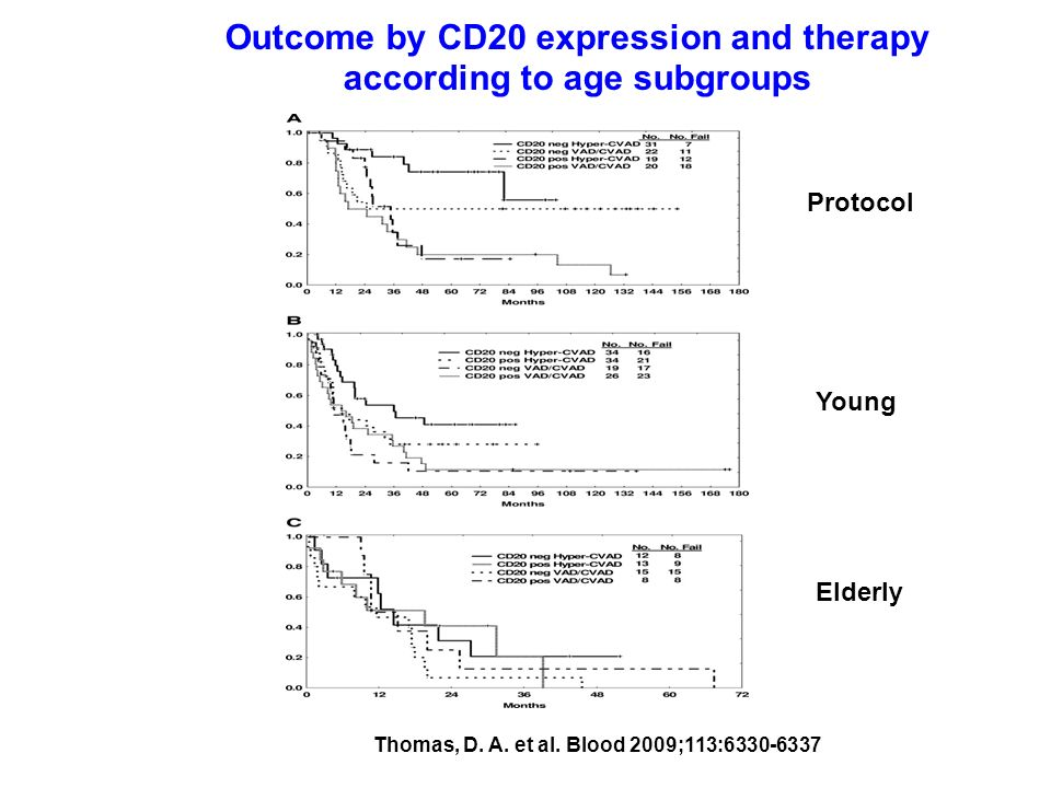 Outcome by CD20 expression and therapy according to age subgroups