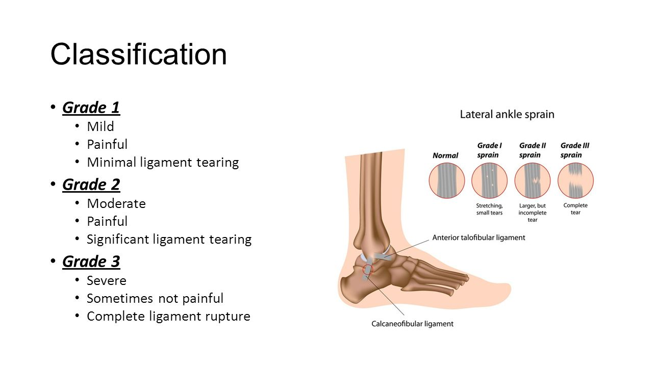 Lateral Ankle Sprains and Chronic Ankle Instability - ppt video ...