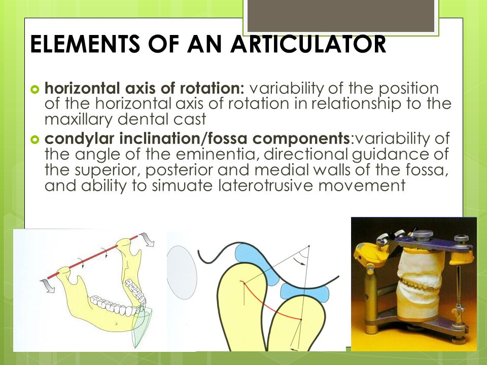 Articulator ppt video online download elements of an articulator ccuart Images