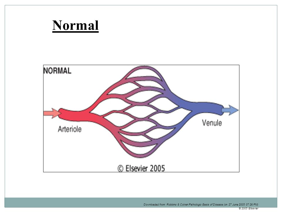 Cvc Lung Liver And Spleen Ppt Video Online Download