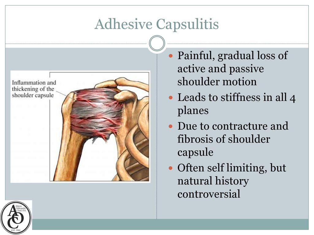 Adhesive Capsulitis of the Shoulder - ppt video online download