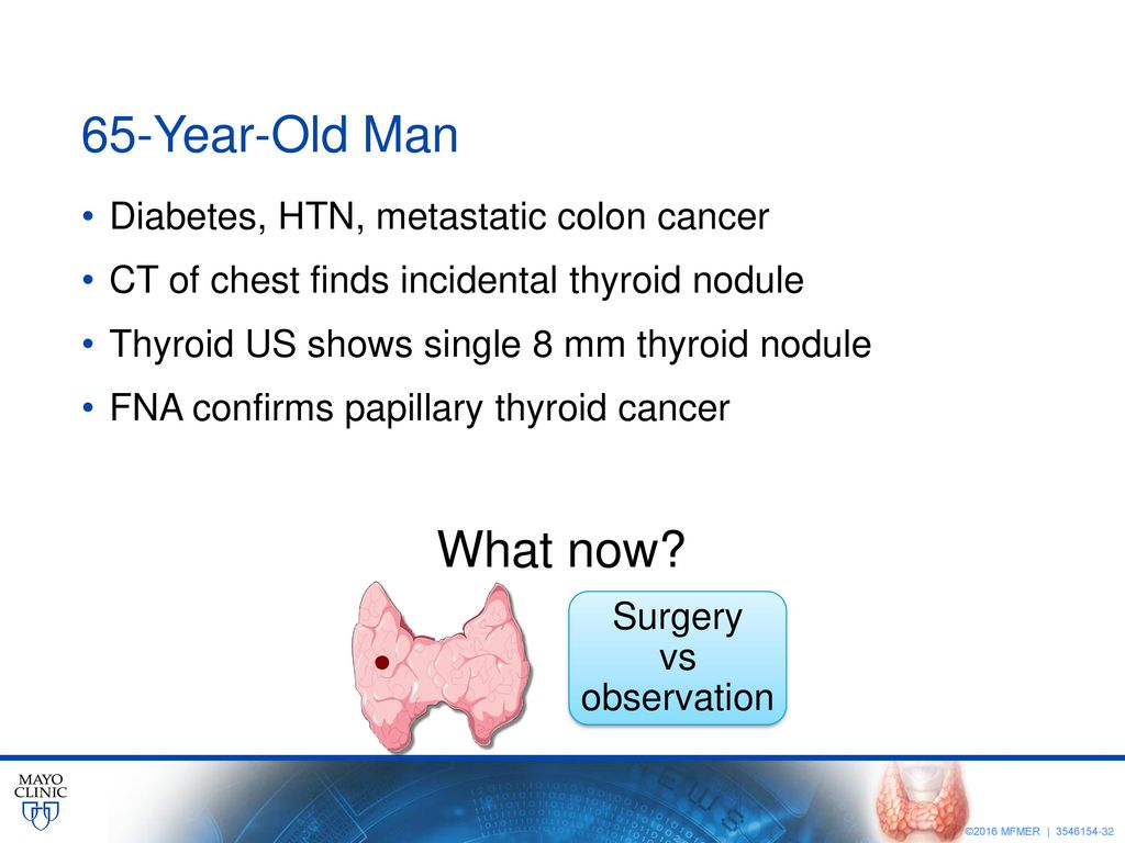 New Concepts In Thyroid Cancer Management Ppt Download