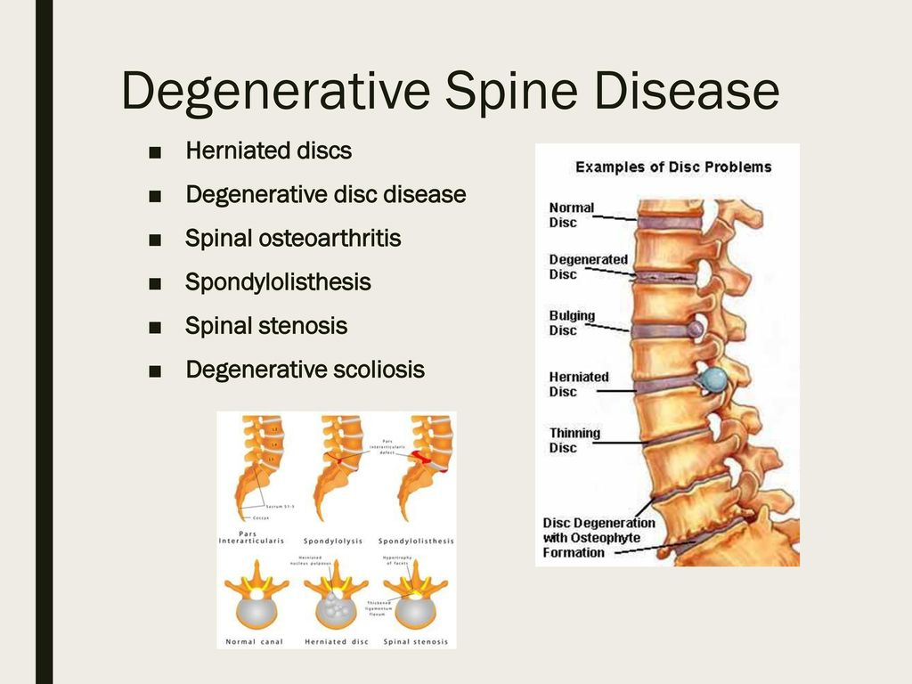 degenerative spinal listhesis Spinal joint instability joint instability is defined as a loss of spinal tissue integrity in the muscles, tendons and especially ligaments it can be referred to as spondylolisthesis (anterolisthesis), lateral listhesis (rotatory subluxation) or retrolisthesis, depending on which direction the vertebra slips.