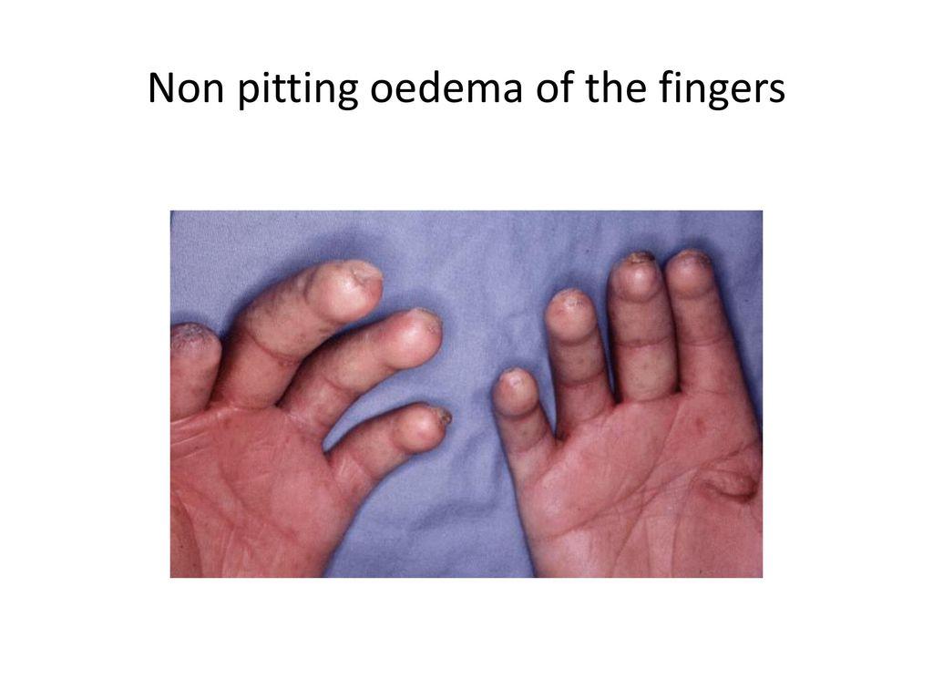 Scleroderma  - ppt video online download