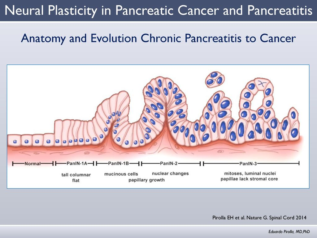 Neural Plasticity in Pancreatic Cancer and Pancreatitis - ppt video ...