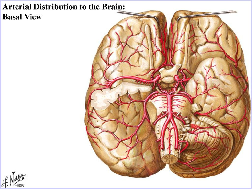 Intracerebral Hemorrhage Rupture of vessel wall due to hypertension ...