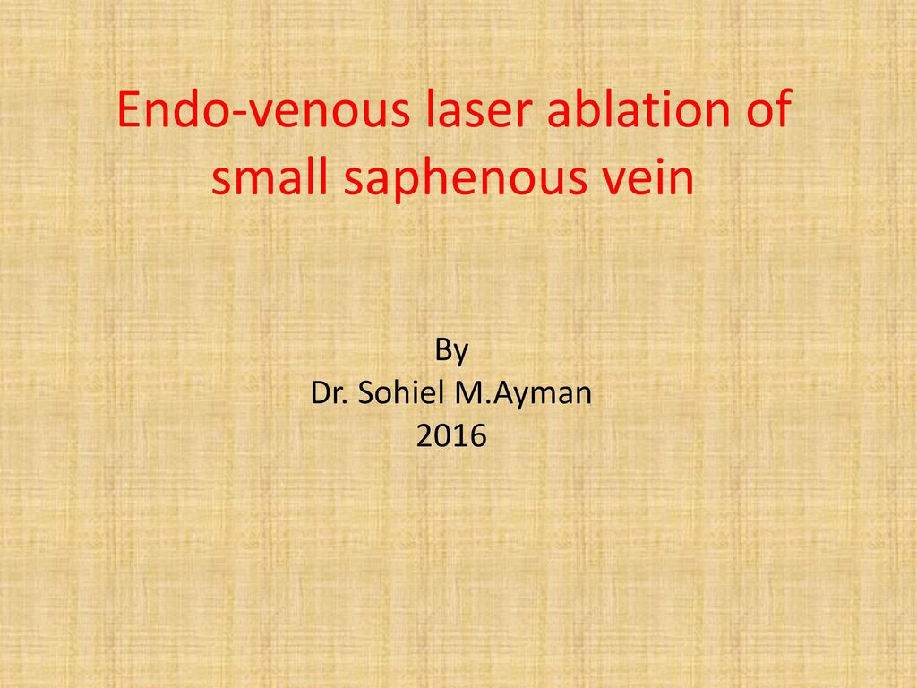 Endo Venous Laser Ablation Of Small Saphenous Vein Ppt Download