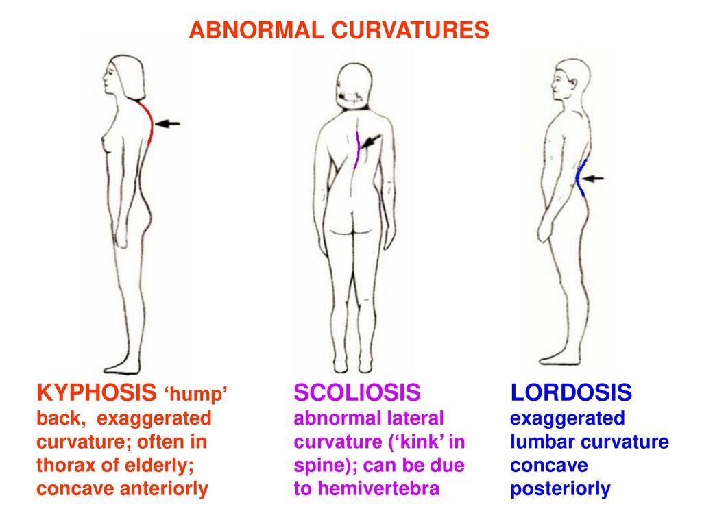 medical imaging of the vertebrae ppt download