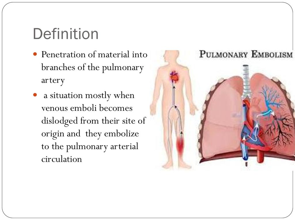 Pulmonary embolism - diagnosis and treatment - ppt download