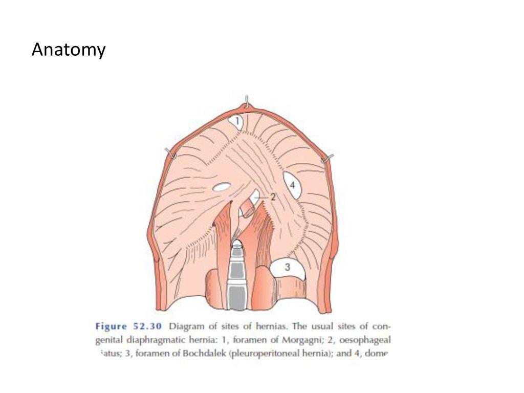 Congenital hernia