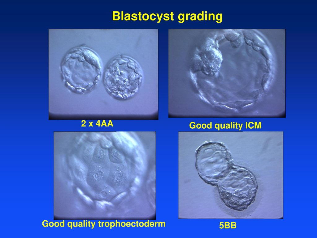 Culture System To Blastocyst Ppt Video Online Download