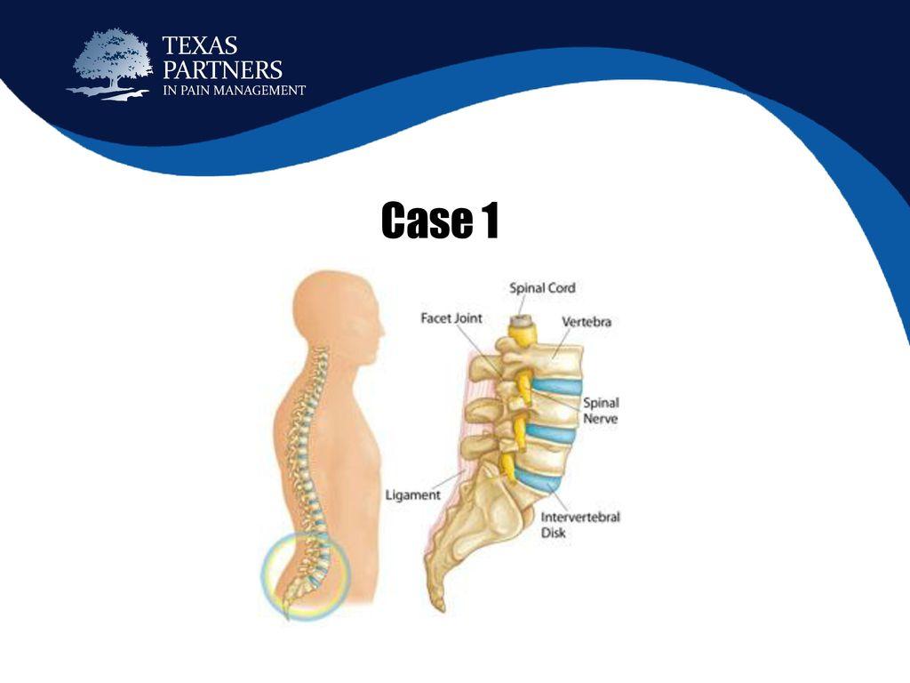 Chiropractic & Pain Case Studies - ppt download
