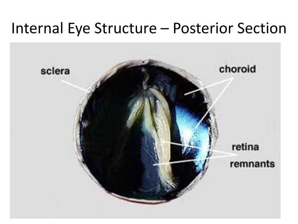 Part I: The Eye Part II: Sheep Eye Dissection - ppt download