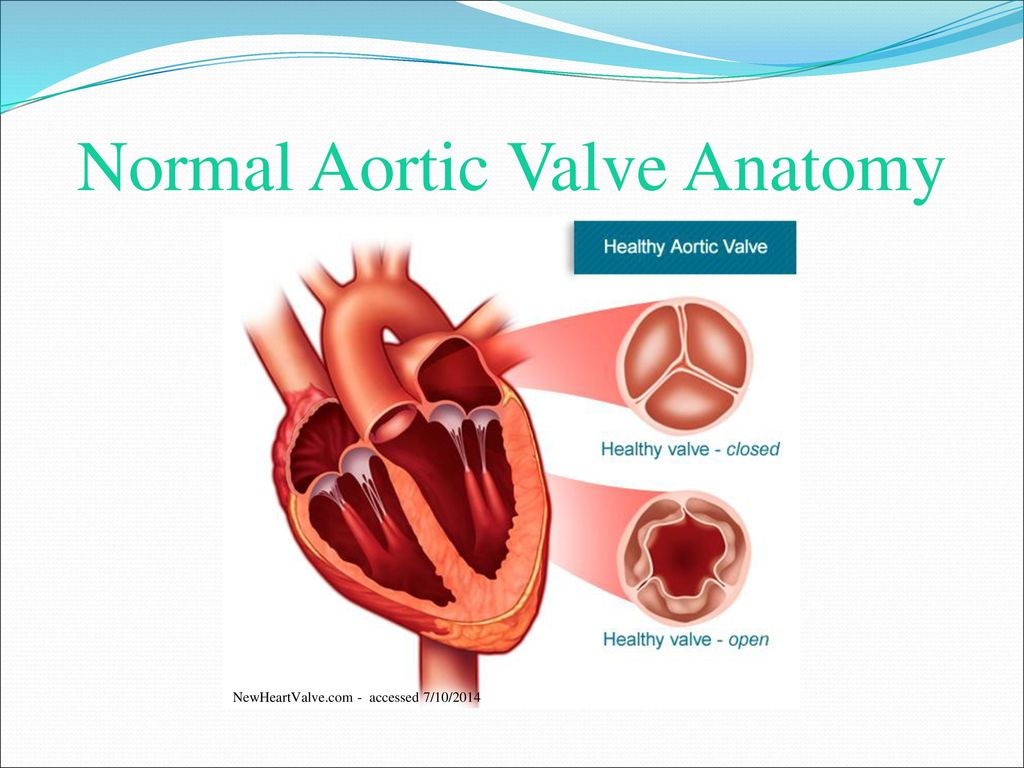 Aortic Stenosis and TAVR - ppt download