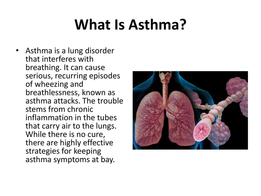 A Visual Guide to Asthma - ppt download