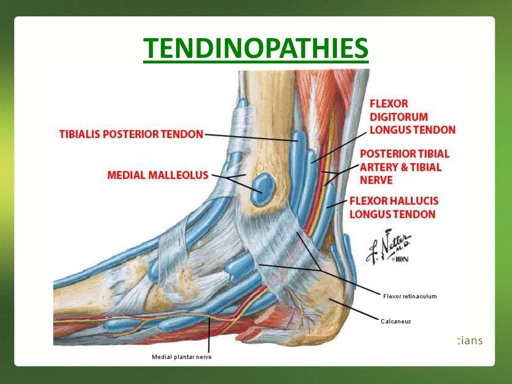 Medial Ankle and Heel Pain - ppt download