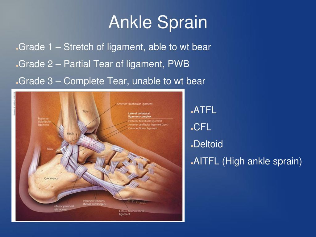Foot & Ankle Exam Gait – Guarded, antalgic, steppage, waddling, NWB ...