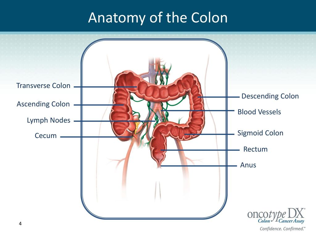 Patient Guide to Colon Cancer Surgery and Treatment - ppt download