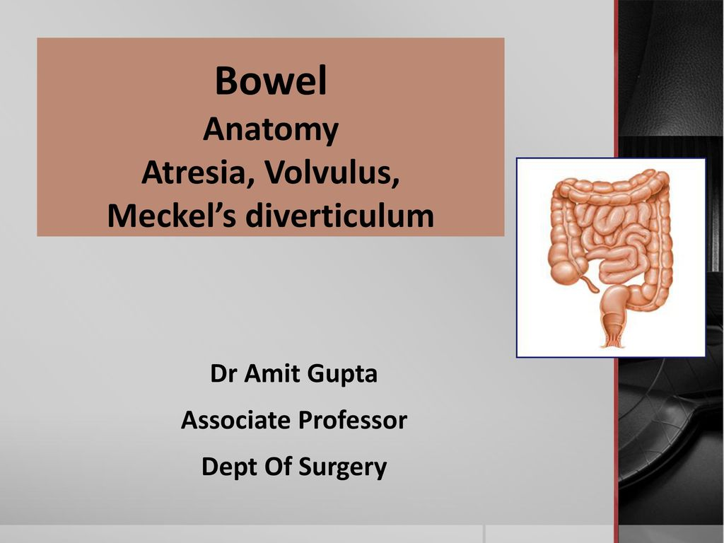 Bowel Anatomy Atresia, Volvulus, Meckel\'s diverticulum - ppt download