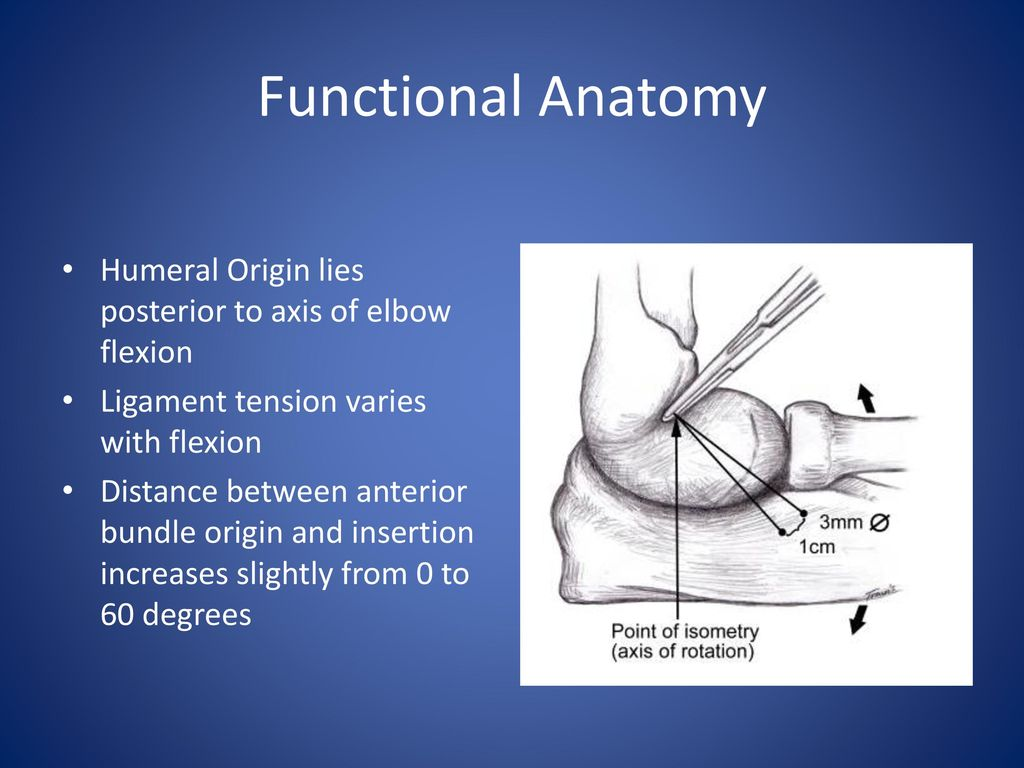 Ulnar Collateral Ligament Injuries in Throwing Athletes - ppt download