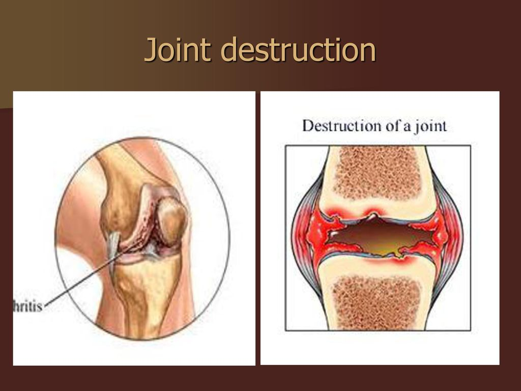 Total Knee Replacement Ppt Download