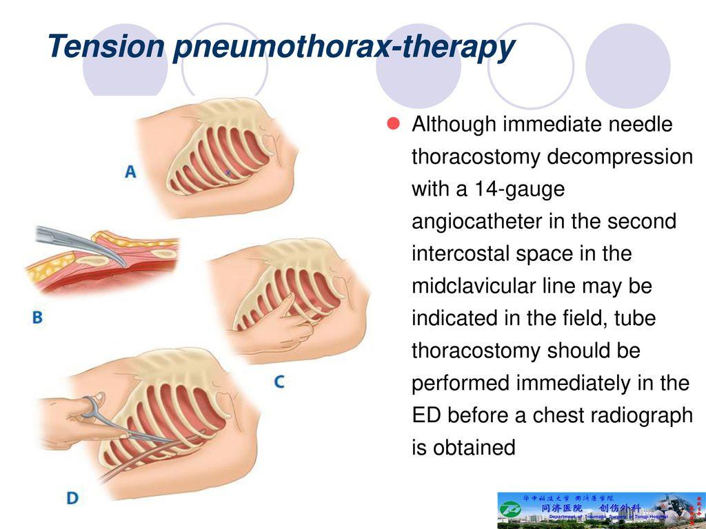 tension pneumothorax needle decompression - HD1024×768