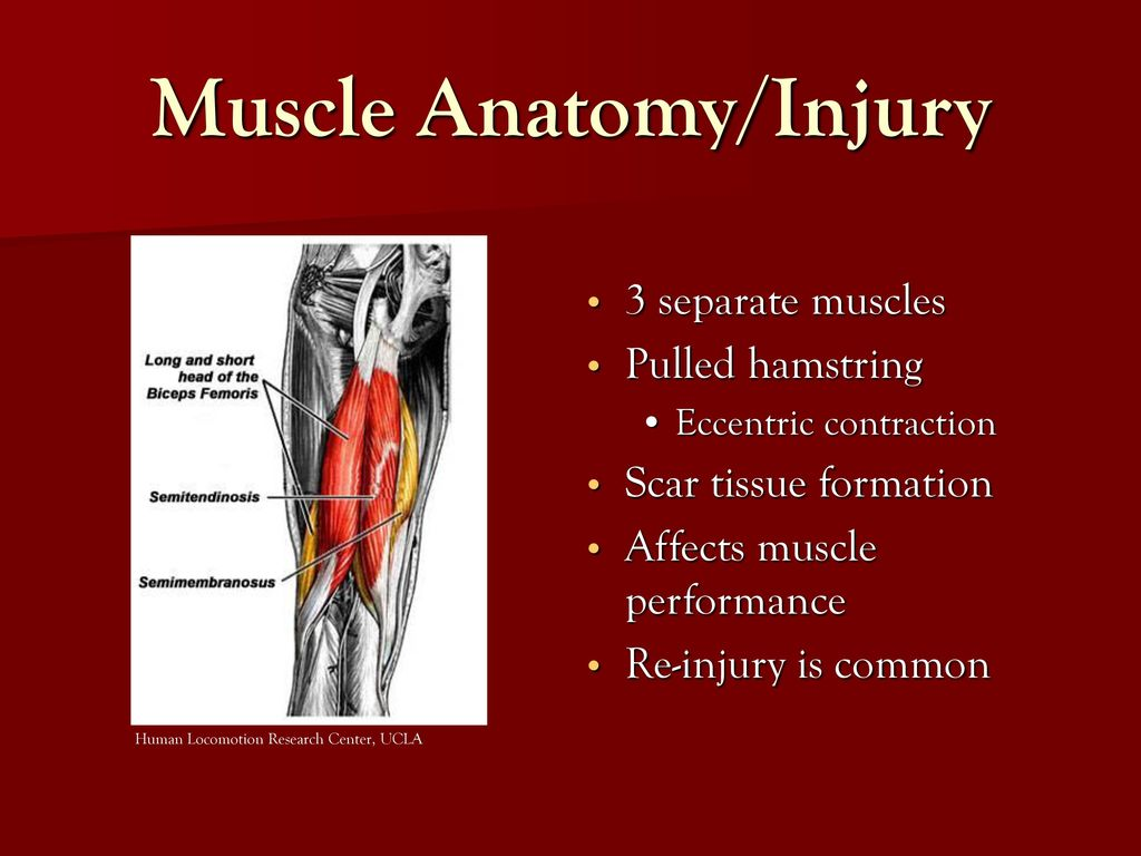 Abstract Hamstring injuries are one of the most common muscle ...